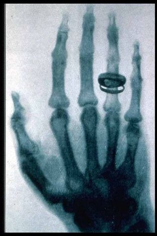 Roentgen's hand